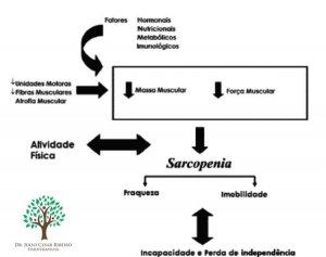 gráfico sarcopenia